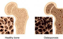 Nordic walking- czy jest odpowiedni dla osób z osteoporotycznym złamaniem kręgów?