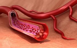 Porównanie chodzenia z kijkami i tradycyjnego chodzenia w rehabilitacji chorób tętnic obwodowych.