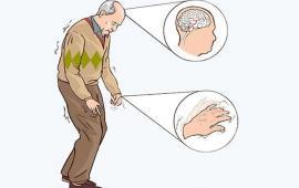Korzyści z zastosowania Nordic Walking w rehabilitacji osób z chorobą Parkinsona